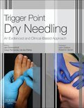 dry-needling-triggerpoints