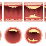 hoe ontstaat cholesterol