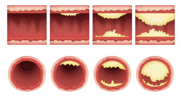 Hoe ontstaat cholesterol?