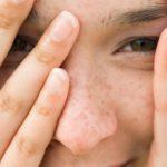 Huidproblemen door hormonen bij vrouwen