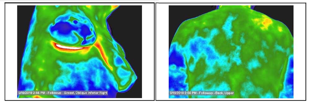Preventief borstonderzoek met thermografie