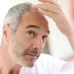 Goede natuurlijke haargroeimiddelen voor mannen
