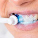 Hoe houd jij je tanden schoon en mooi?